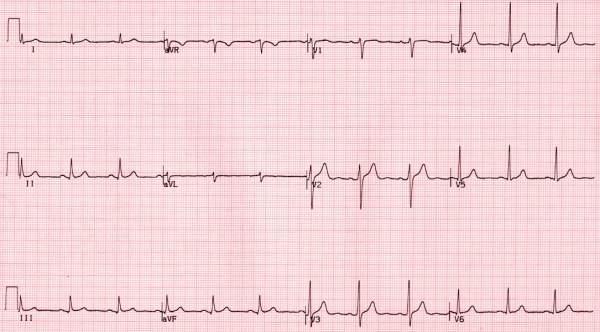 Wydruk EKG